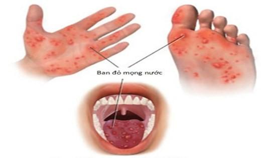 Truyền thông phòng chống bệnh tay chân miệng và sốt xuất huyết.
